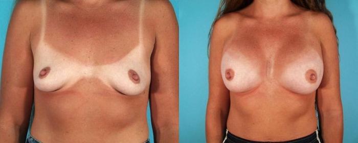 До и после силикона. Пластическая хирургия груди НЮ (9 фото)