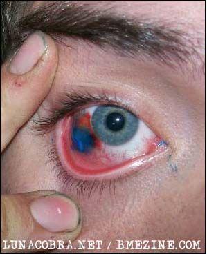 ЖЕСТЬ. Татуировка на глазах (13 фото)