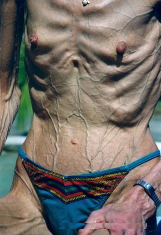 Бодибилдерша-анорексичка (8 Фото) НЮ