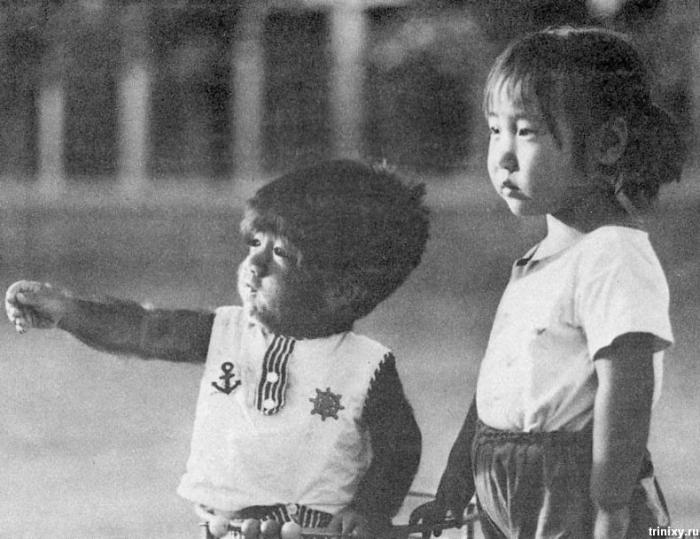 Самый волосатый человек в детстве (3 фото)