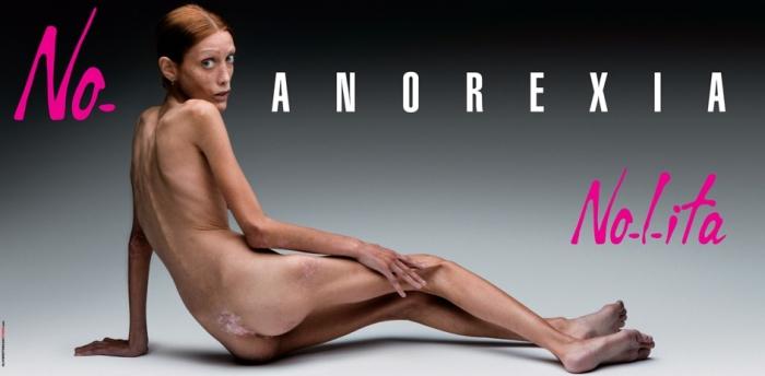 ЖЕСТЬ ДНЯ. Анорексия на миланских билбоардах (3 фото)