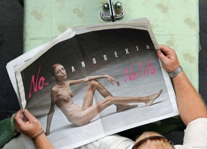 """Болезнь """"Анорексия"""" (60 фото)"""