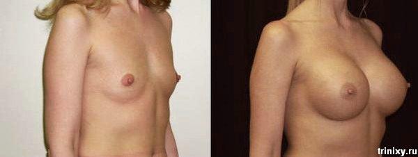 Грудь до и после силикона (18 фото)