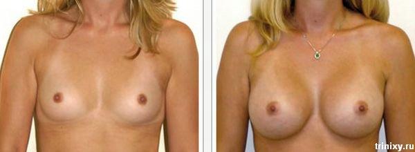 силиконовые титьки до и после фото переставая