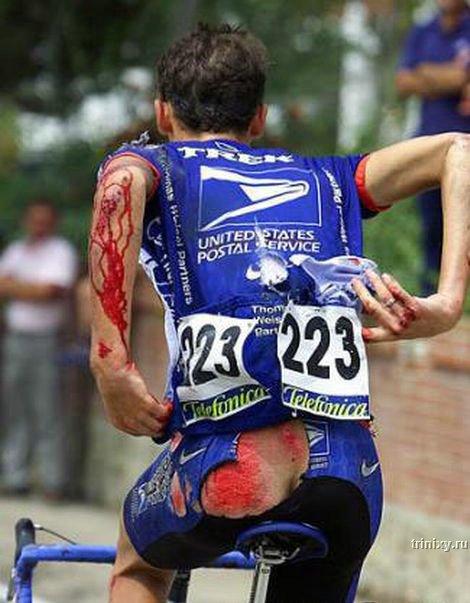 Спорт = здоровье? Не всегда (24 фото)