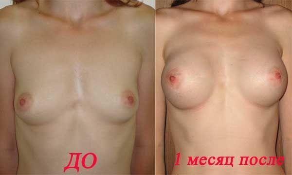 Личный дневник. Операции по увеличению груди (23 фото + текст) НЮ