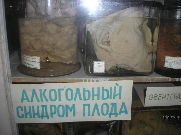 Жесть. Музей паталогической анатомии (10 фото)