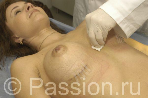 Операция по увеличению груди (26 фото) НЮ