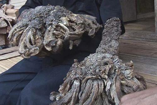 """Жесть. Американский дерматолог взялся вылечить """"человека-дерево"""" (3 фото + видео)"""