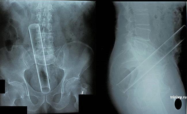 Рентгеновские снимки из травмпункта (12 фото)