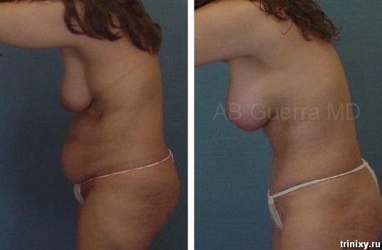Ужасы пластической хирургии (28 фото)