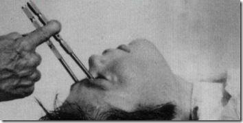 10 самых вредных медицинских практик (10 фото)