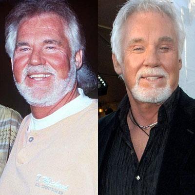 Знаменитости до и после пластической операции (15 фото)