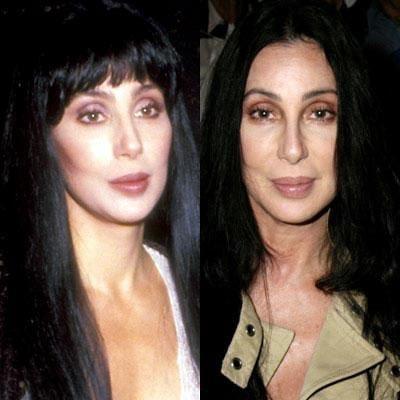 Знаменитости до и после пластической