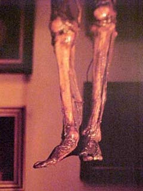 Музей медицинской истории Мюттера в Филадельфии (26 Фото)