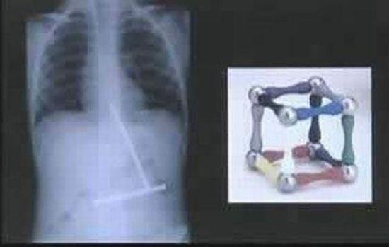 Жесть! Предметы, найденные в человеческих желудках (14 фото + текст)