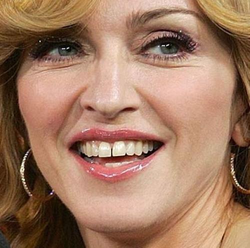 Cамые некрасивые зубы знаменитостей (9 фото   текст)