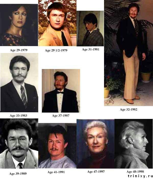 Ужасная мутация (4 фото)
