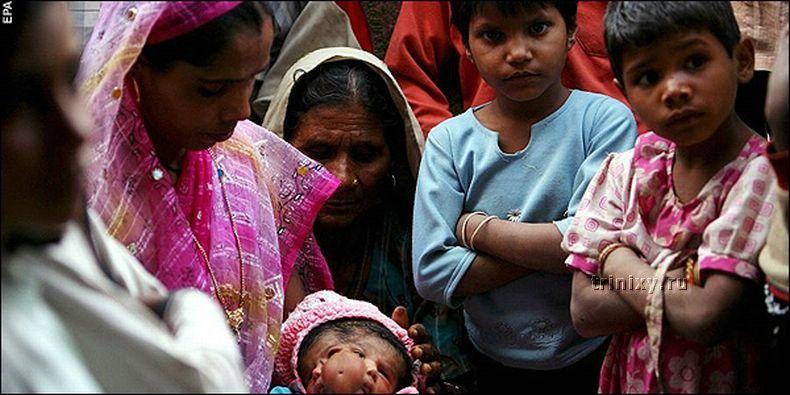 В Индии родилась девочка с двумя лицами (4 фото)