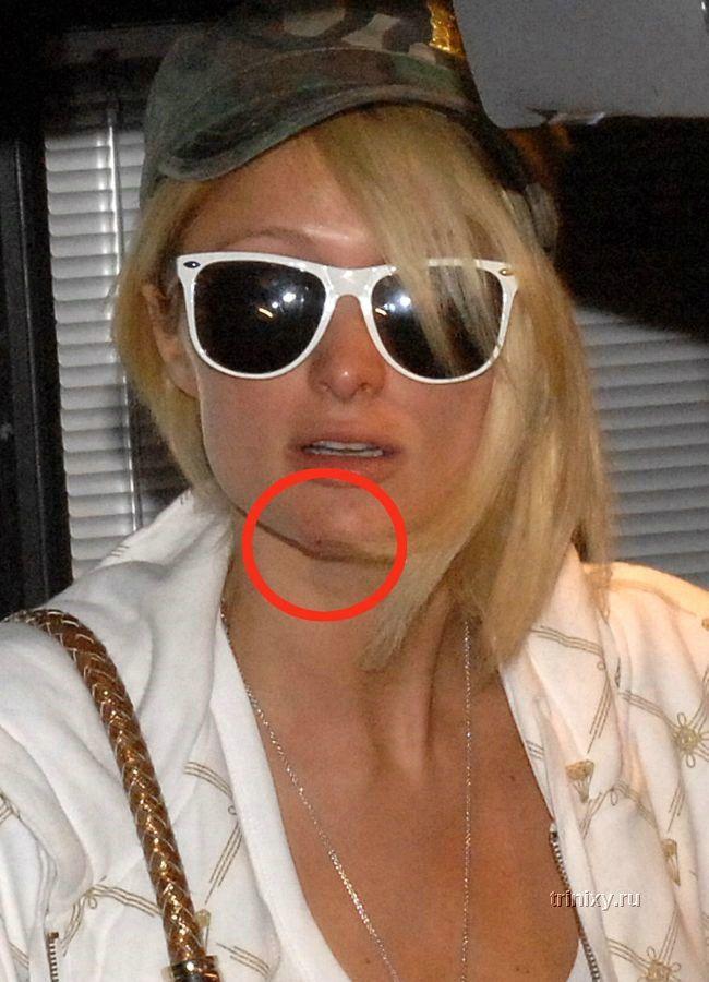 Как Пэрис Хилтон подбородок разбила (12 фото)