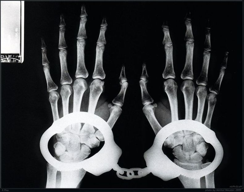 Жизнь под рентгеном - 2 (27 фото)