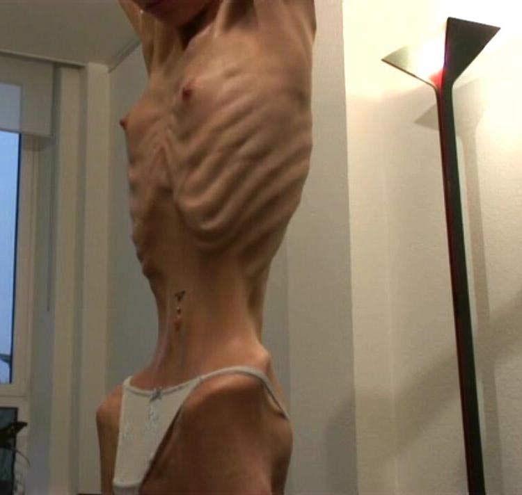 Анорексия. Диагноз - болен (39 фото) НЮ