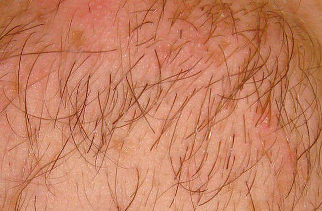 волосы на члене фото