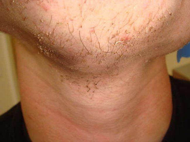 Экстрим-бритье (23 фото)