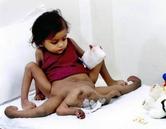 Люди с врожденными и приобретенными патологиями (38 фото)