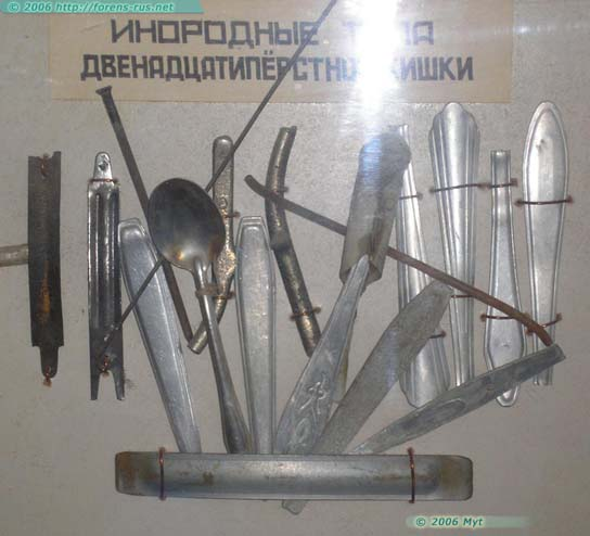 Инородные тела, извлеченные из заключенных в одином из стационаров системы УИН на Cеверном Урале (5 фото)