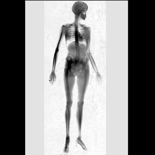 Под лучами рентгена (22 фото)