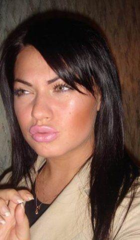 Оттопыренные губы (43 фото)