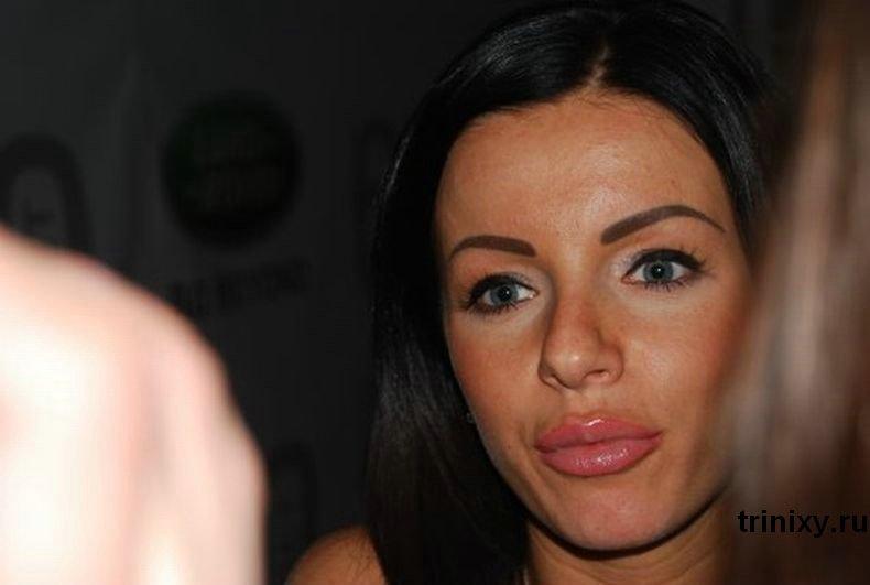Юлия Волкова после пластической операции (2 фото)