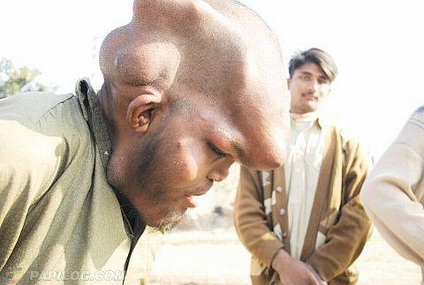 Жесть. Пакистанский попрошайка (6 фото)
