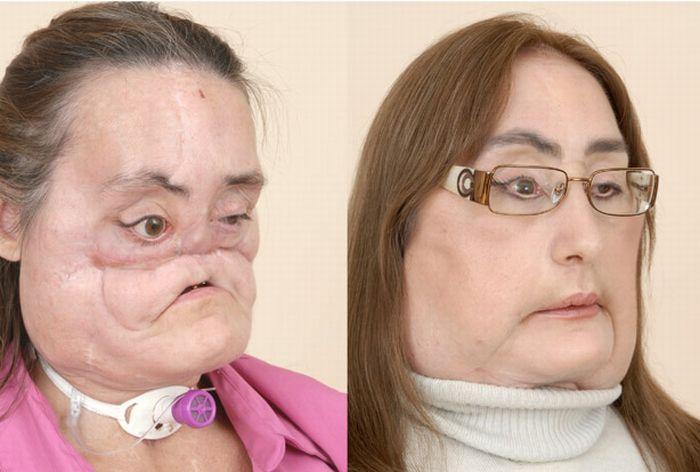 Новое лицо (7 фото) Не для слабонервных