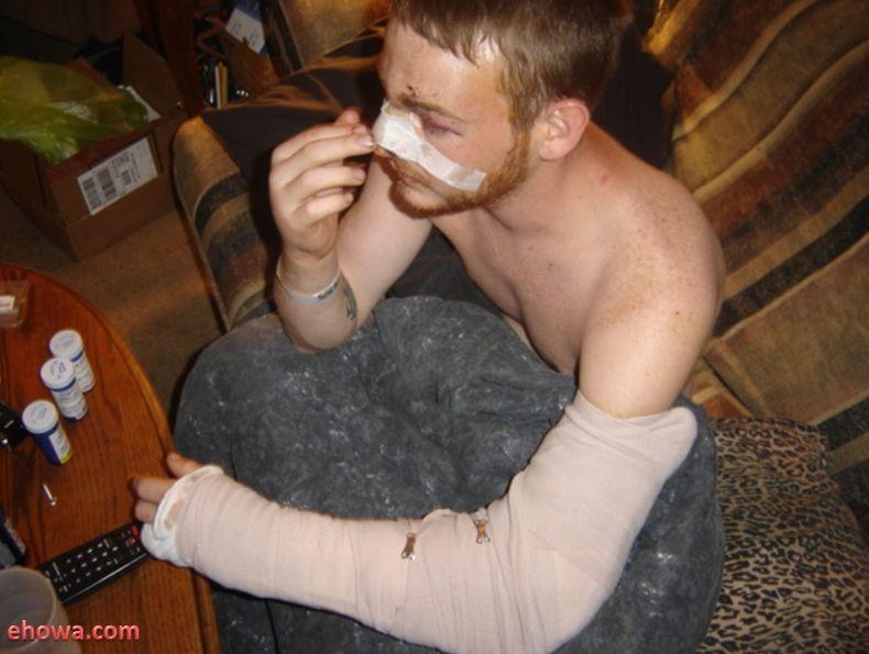 Жертва пивного бочонка (4 фото)