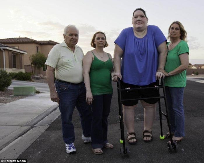 Таня Ангус и ее страшная болезнь (5 фото)