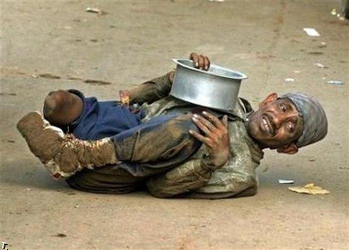 Попрошайки-калеки из Индии (17 фото)
