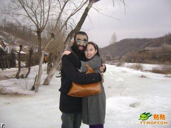 Самый волосатый человек в мире и его девушка (11 фото)