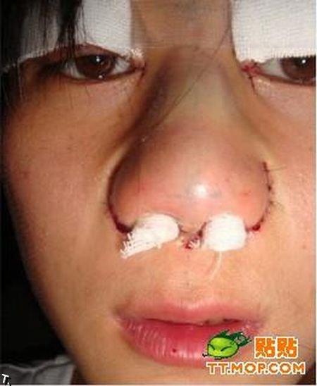 Девушка до и после ринопластики (18 фото)