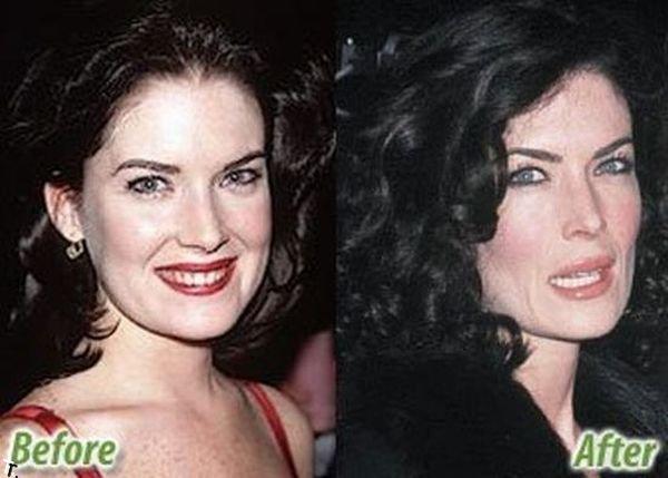 Звезды до и после пластических операций (47 фото)