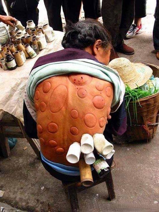 Уличная медицина в Китае (7 фото)