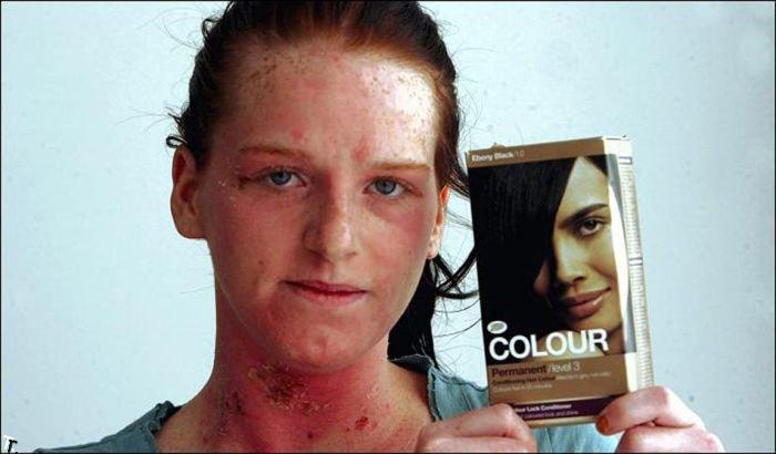 Девушка купила дешевую краску для волос... (6 фото)