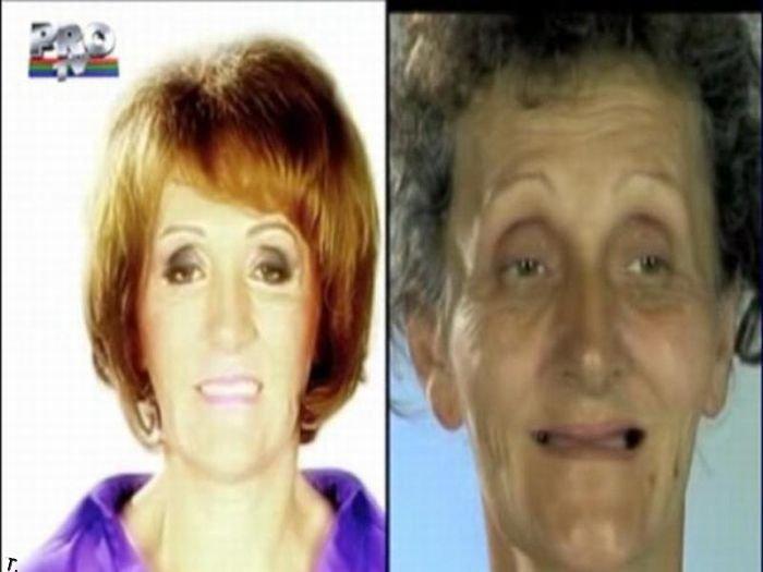 Румынское шоу. До и после пластической операции (31 фото)