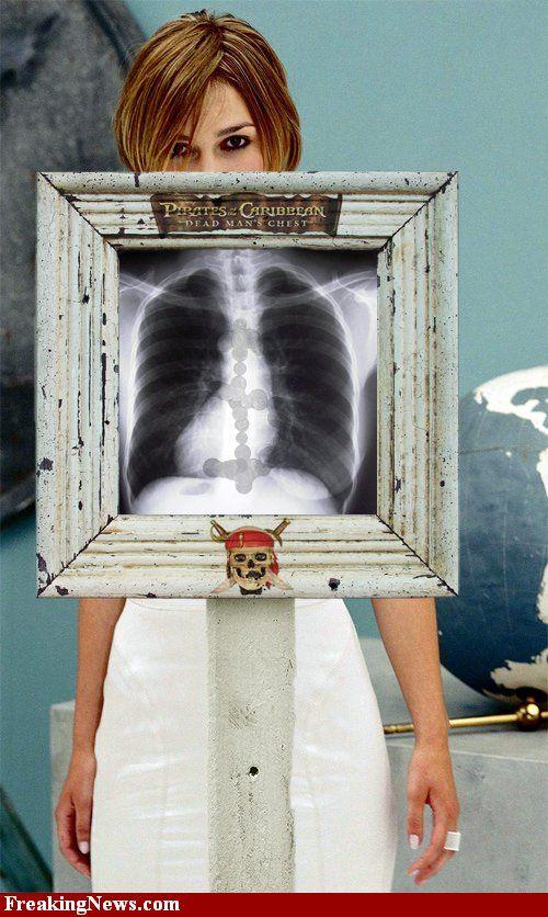 Знаменитости под рентгеном (29 фото)