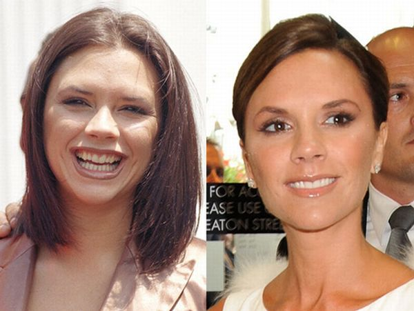Улыбки знаменитостей. До и после (10 фото)