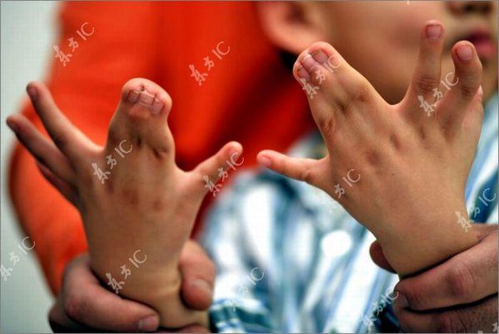 Мальчик с 34 пальцами (13 фото)