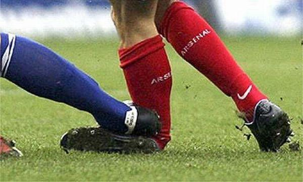 Худшие футбольные травмы (15 фото)
