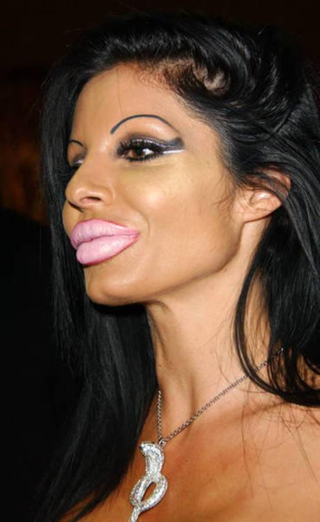 Мисс перекаченные Силиконовые губы.