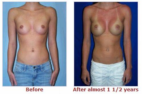 Девушки до и после пластических операций (76 фото) НЮ